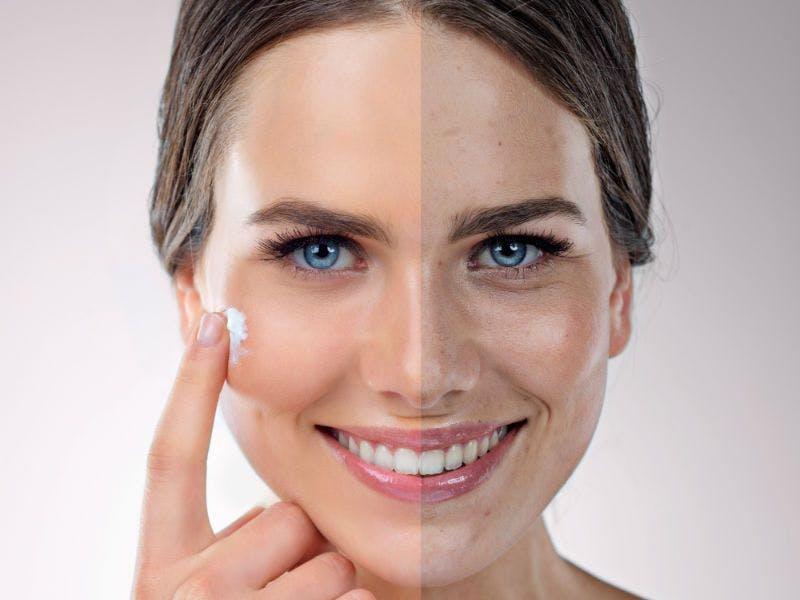 Der Hauttyp Mischhaut braucht eine komplexe Pflege.