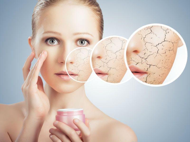 Der Hauttyp trocken braucht besonders viel Pflege.
